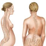Cifoza tratata prin kinetoterapie