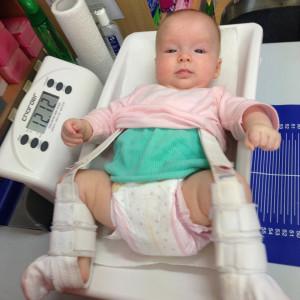 Luxatia congenitala de sold tratata prin kinetoterapie